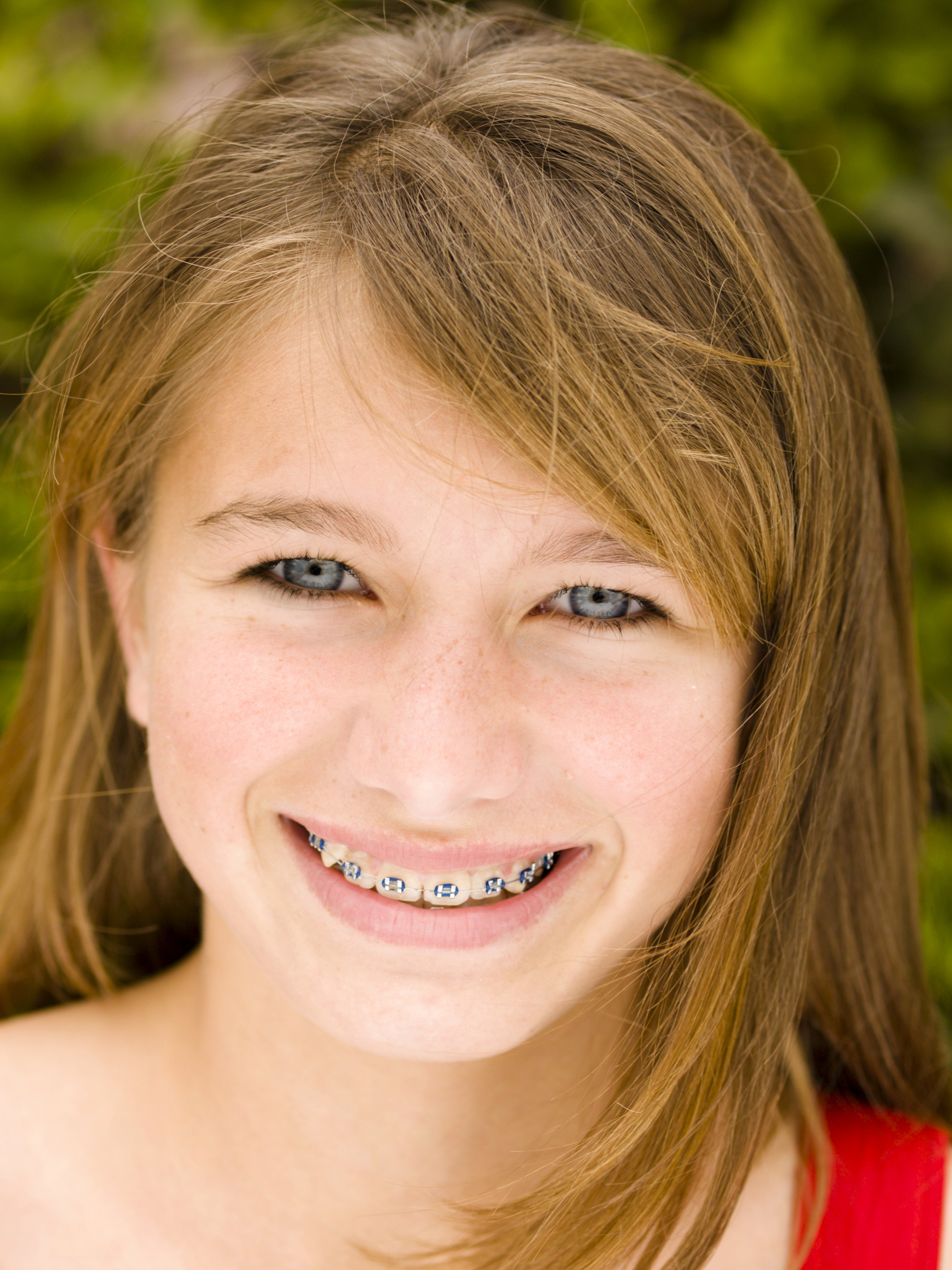 Porn pics of teen girls with braces Page 1